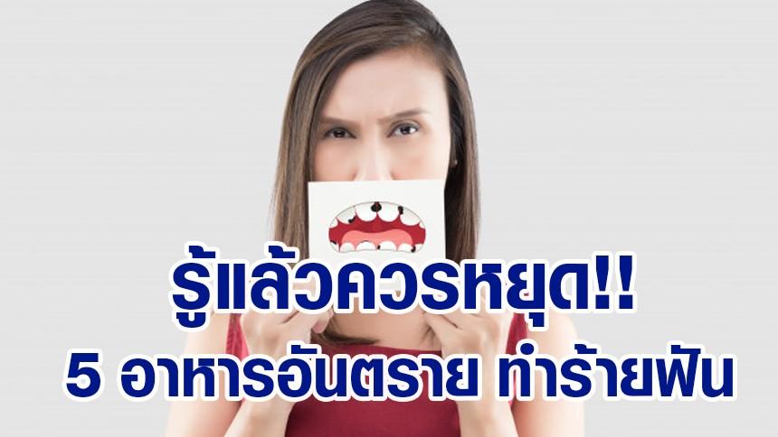 รู้แล้วควรหยุด!! 5 อาหารอันตราย ทำร้ายฟัน