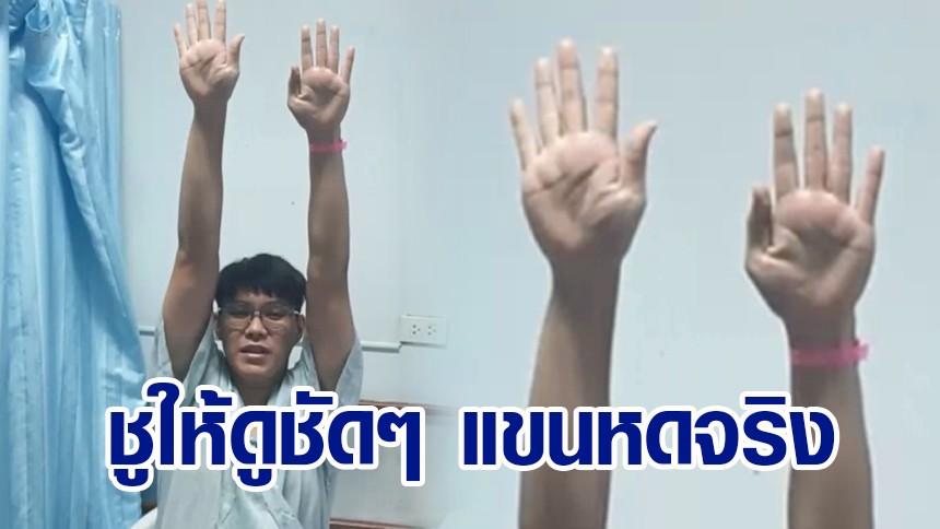 ชูให้ดูชัดๆ หนุ่มลำปางแขน-ขาหด หลังฉีดแอสตราฯ ได้เงินชดเชยหมื่นเดียว ไม่พอรักษา