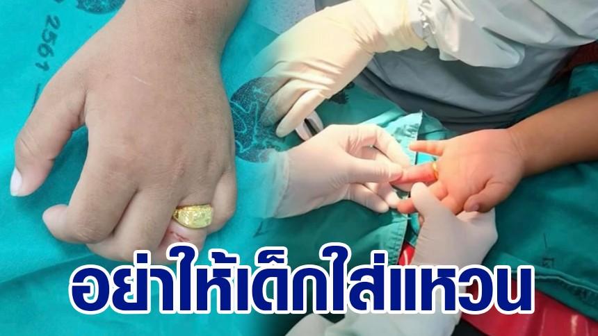 เด็ก 3 ขวบ ร้องไห้ระงมแหวนติดนิ้ว บวมเป่งถอดไม่ออก ต้องส่งเข้าห้องผ่าตัด
