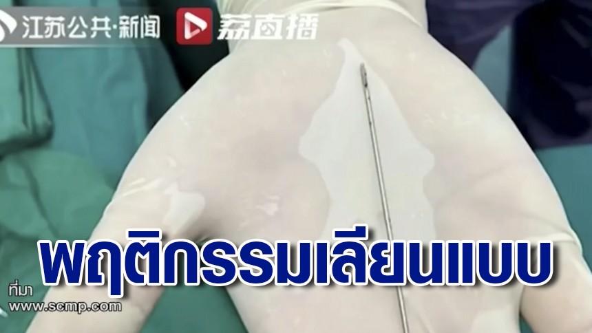 เด็กจีนยัดเข็ม 9 ซม.ในอวัยวะเพศ นาน 2 สัปดาห์ สุดท้ายทนเจ็บไม่ไหว หามส่งมือหมอ